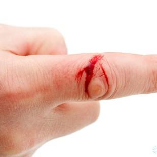 Дезинфицировать порез или царапину